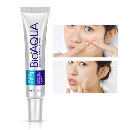 Picture of Bioaqua Anti Acne Cream